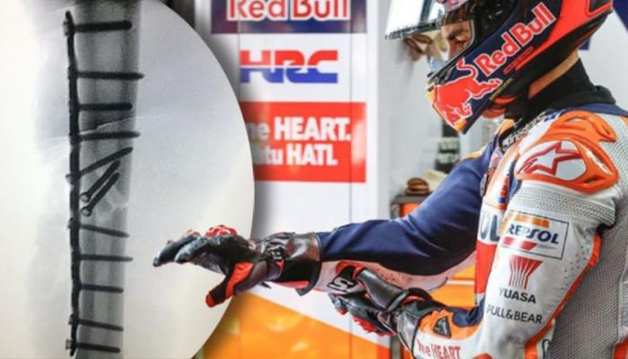 MotoGP 2021: Marc Marquez szykuje siędo kolejnej operacji ramienia